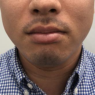 髭脱毛4回目翌日