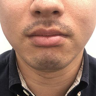 髭脱毛4回目1週間後