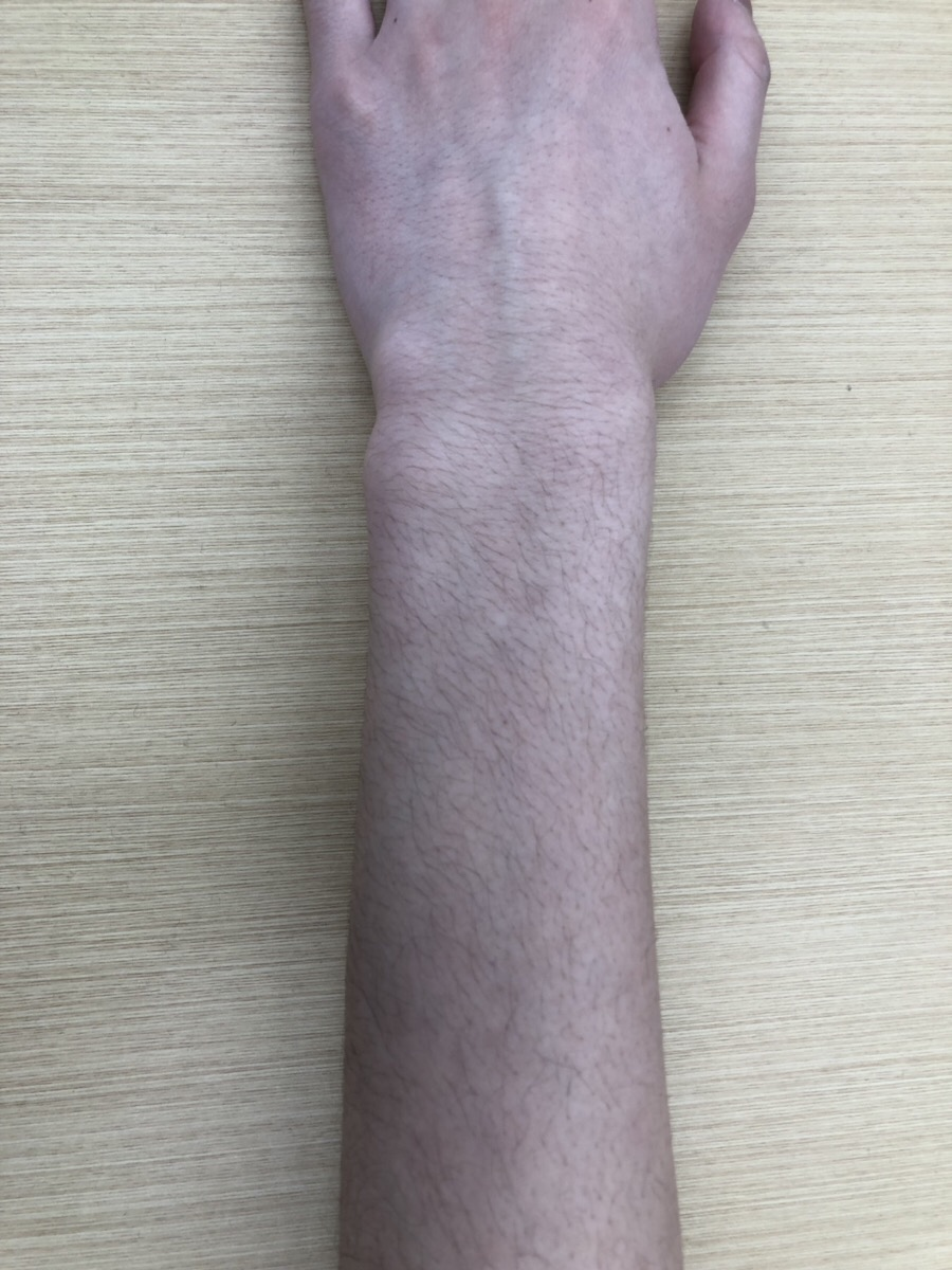 男性の腕毛2
