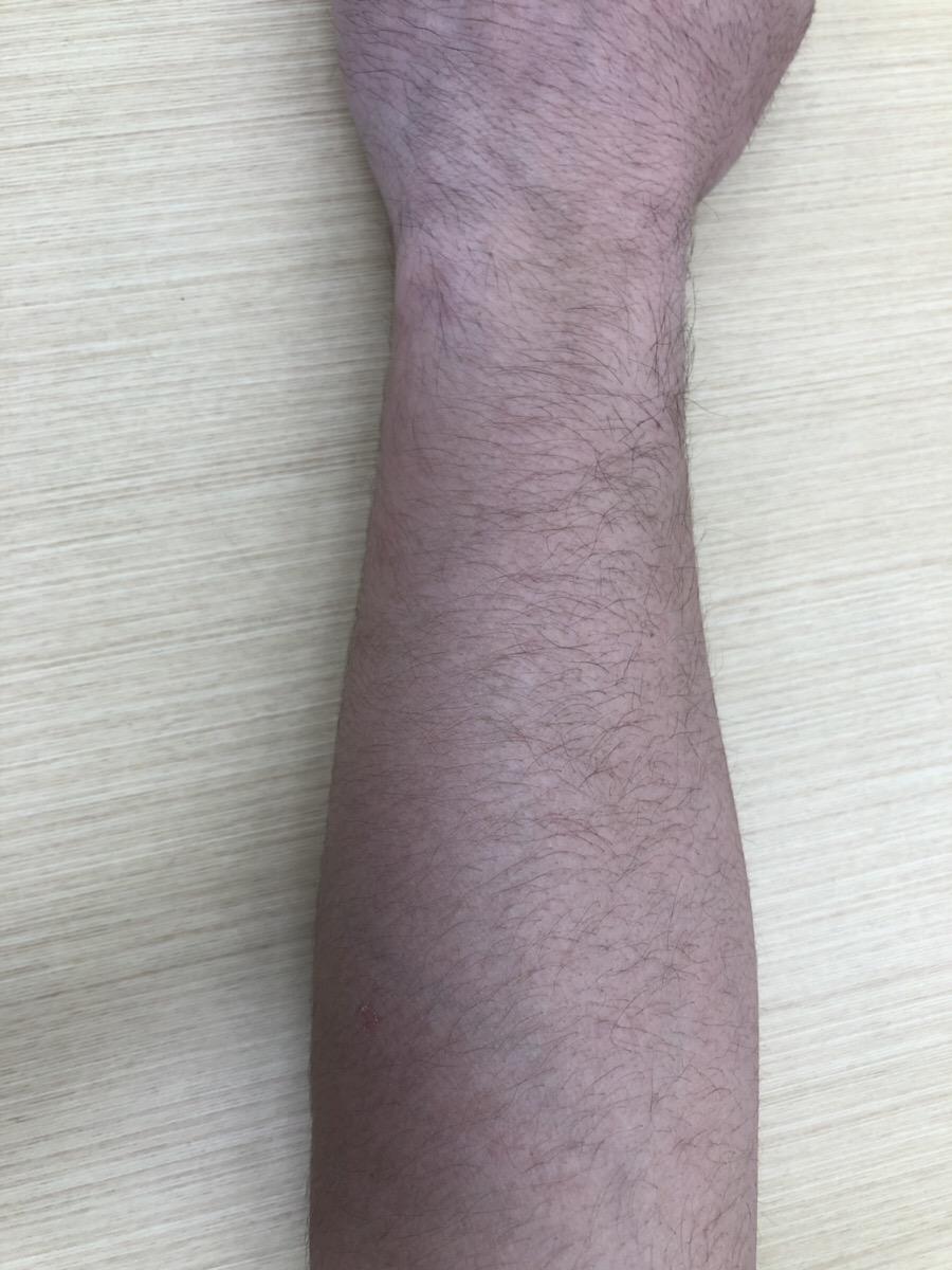 男性の腕毛