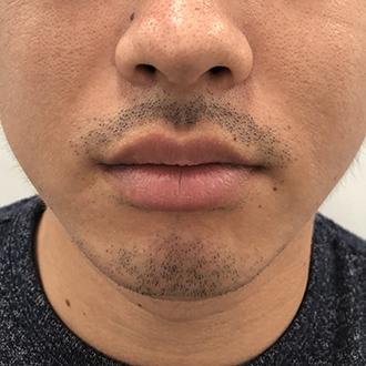 髭脱毛1回目6週間後