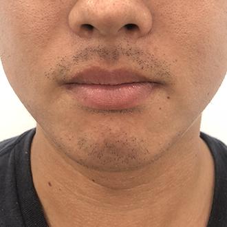 髭脱毛3回目