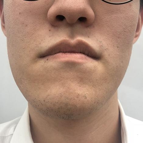 ヒゲ脱毛3回目6週間後の写真