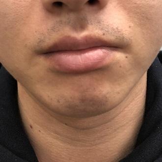 髭脱毛5回目4週間後